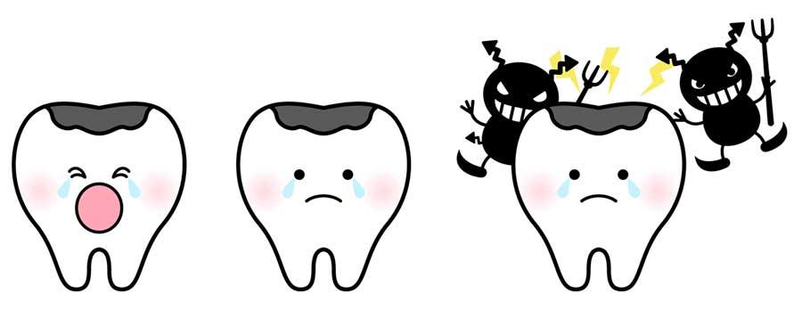 キシリトールの効能・効果で虫歯予防